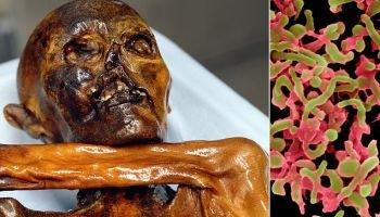 کشف ویروس 5000 ساله در جسد مومیایی یخ زده+ تصاویر