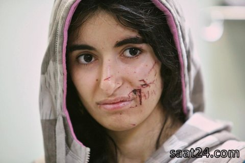 زن عراقی آواره از حملات داعش که زخمی شده و در بیمارستان در حال طی مراحل درمان است