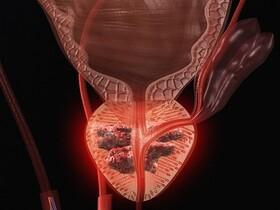 سرطان پروستات | علت سرطان پروستات | روش جدید درمان سرطان پروستات