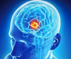 سرطان مغز چیست؟ | نحوه تشخیص تومور مغزی | علائم تومور مغزی