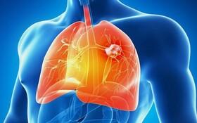 سرطان ریه | مهمترین علائم سرطان ریه | نحوه تشخیص سرطان ریه