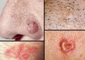 سرطان پوست | علائم سرطان پوست |  نحوه تشخیص سرطان پوست