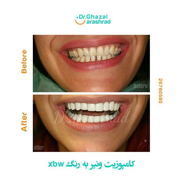 چرا کامپوزیت دندان؟ پاسخ به سوالات متداول درباره کامپوزیت دندان